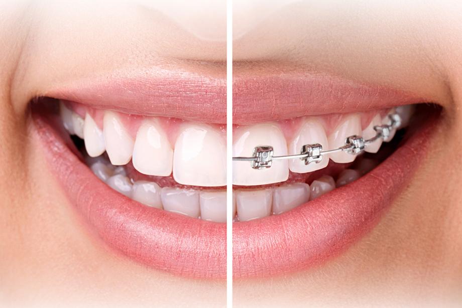 ortodontics